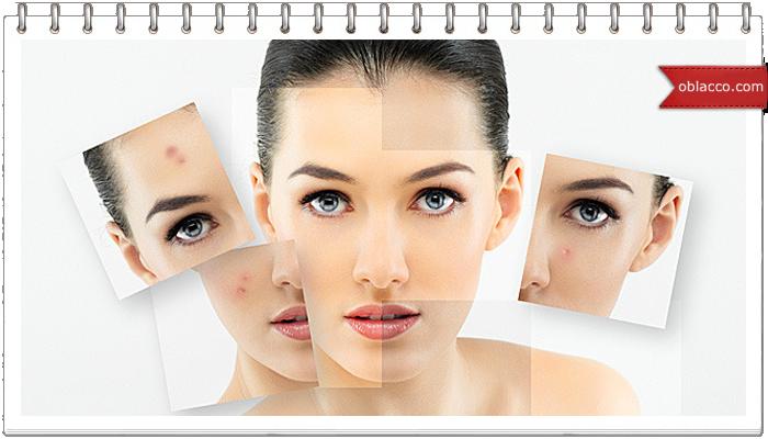 Что важно знать про угревую сыпь у женщин