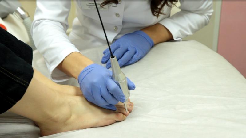 Елена малышева жить здорово лечение грибка ногтей
