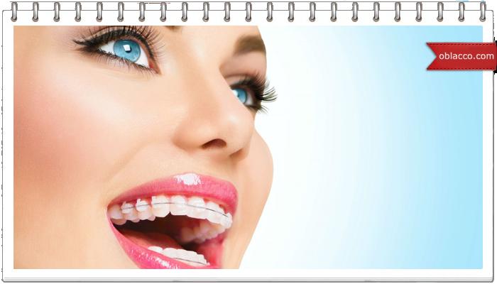 Брекеты сапфировые – сверкающее выравнивание зубов