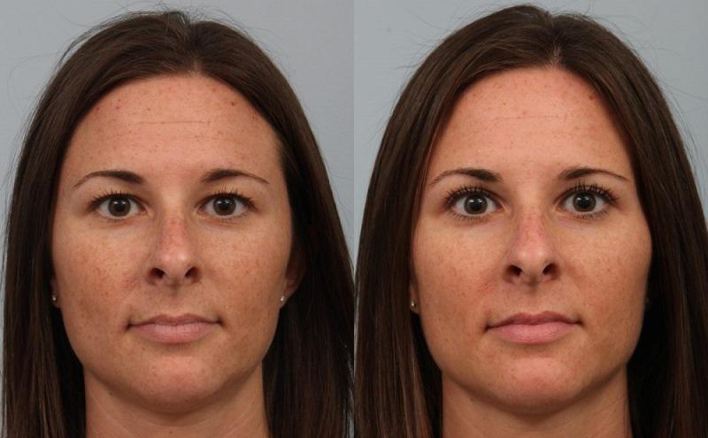 Блефаропластика: отзыв, фото до и после